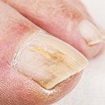 Утолщение ногтевых пластин на ногах может быть вызвано разными факторами. Это и генетические особенности, и неправильный уход, и различные заболевания. Восстановление утолщённых ногтей или их лечение в зависимости от причин будут разными, то же самое можно сказать и про меры профилактики утолщения ногтей на ногах.  529