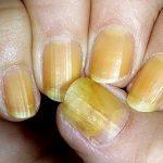 Желтизна ногтевых пластин появляется на порядок чаще других неприятных изменений ногтя. Ее причины могут быть разнообразными: от банальных и легко устранимых до серьезных и отражающих плохое состояние организма. В случае подозрения на заболевание необходимо пройти диагностическое исследование и заняться лечением.  455